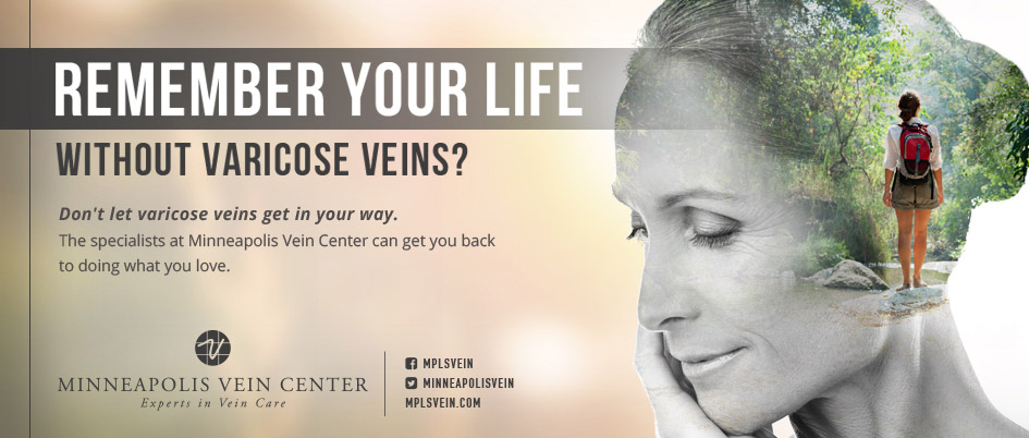 remember-your-life-without-varicose-veins